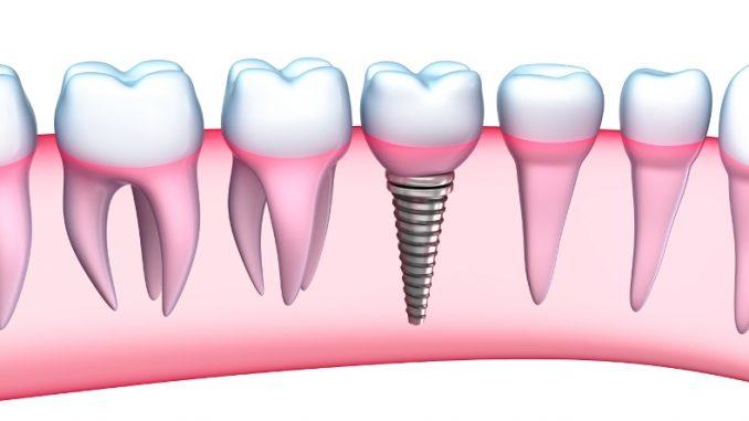 Implanturi_dentare_fastandfixed